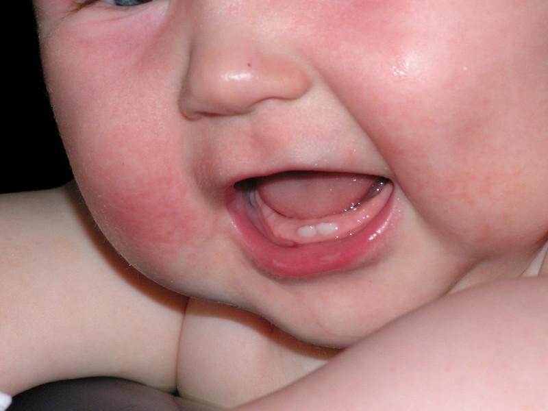 грудной ребенок с диатезом
