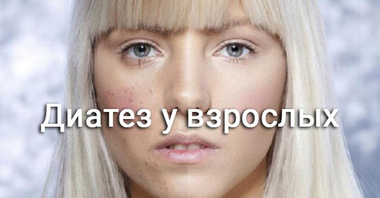 диатез у девушки на щеке