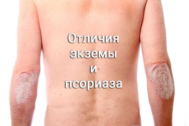 Болезнями путают какими псориаз с