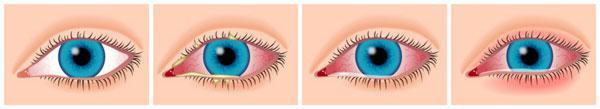 формы глазной аллергии