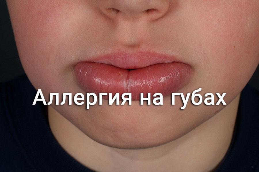 аллергия на губную помаду симптомы