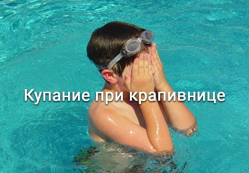 Можно ли купаться при крапивнице не обострив ее?