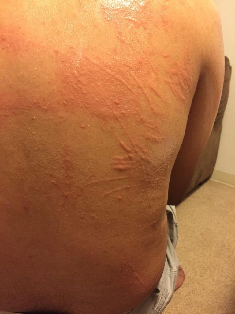 острая форма крапивницы на спине