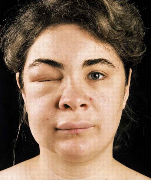 Опухшая часть лица женщины