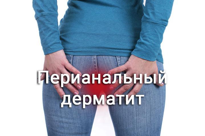 перианальный дерматит