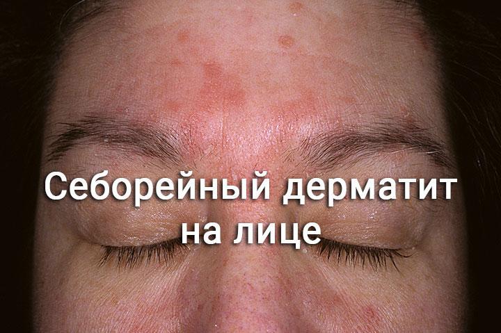 Себорейный дерматит на лбу