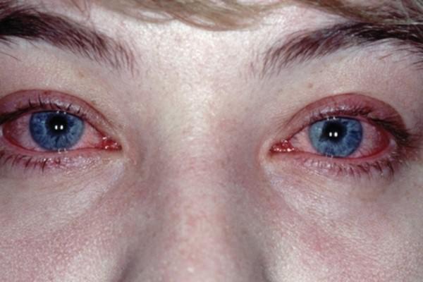 конюънктивит, красные глаза