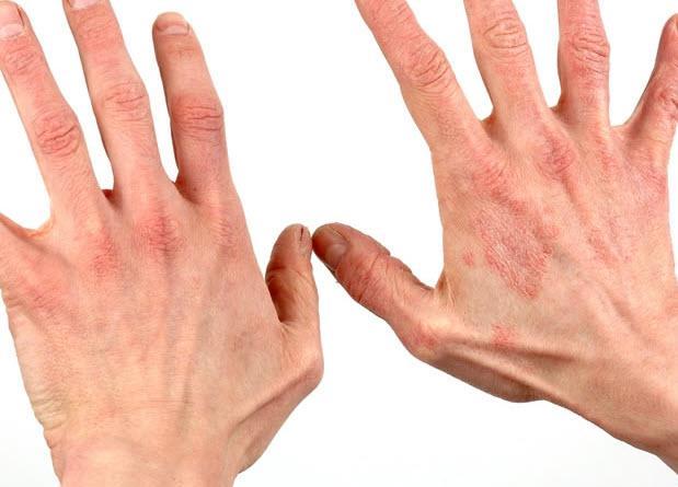 крапивница от паразитов симптомы