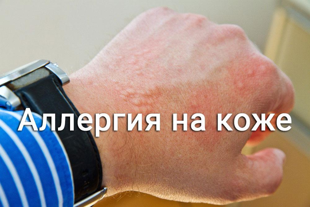 аллергия волдыри на коже фото