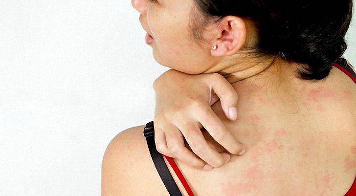 аллергия на мед лечение