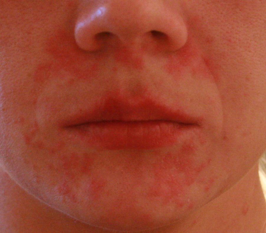 проявление аллергии на пылевого клеща
