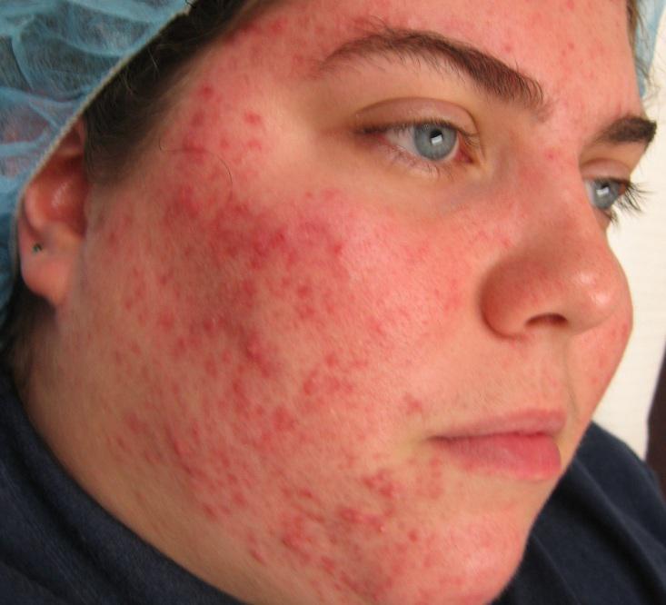на фото на лице а витамин аллергия