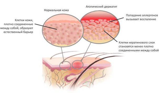 схема появления дерматита