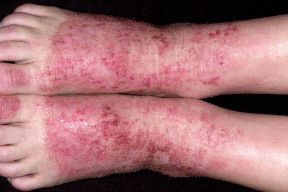 воспаление на ногах