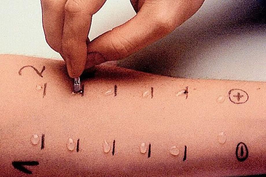 кожные аллергопробы