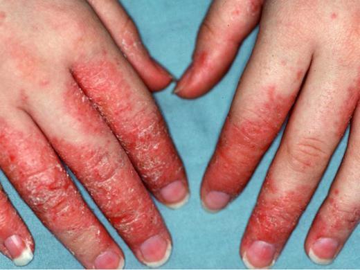 Тяжелая форма дерматита на пальцах