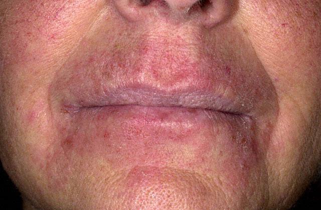 контактный дерматит вокруг рта