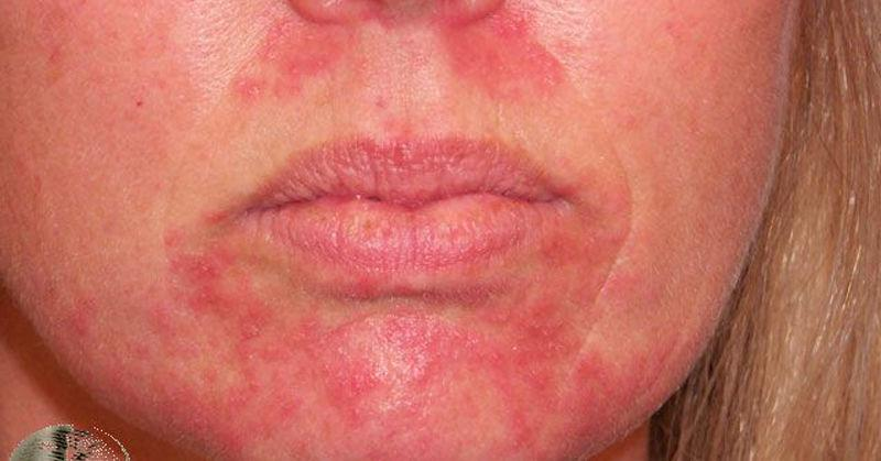 атопический дерматит вокруг рта