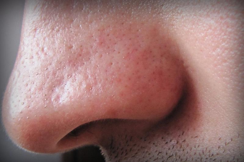 нос с проблемой сальных желез
