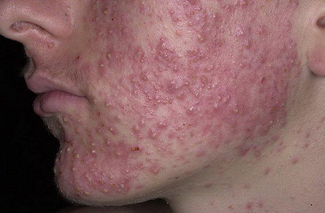 угревая болезнь на щеке