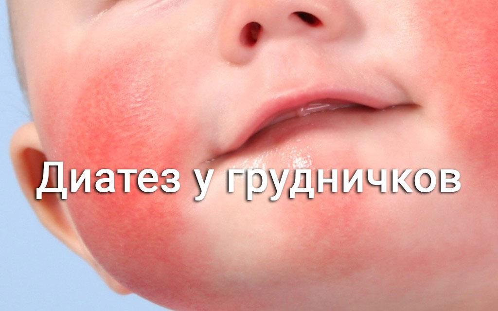 диатез на щеках у грудничка