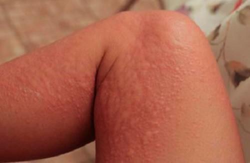 крапивница на левой ноге
