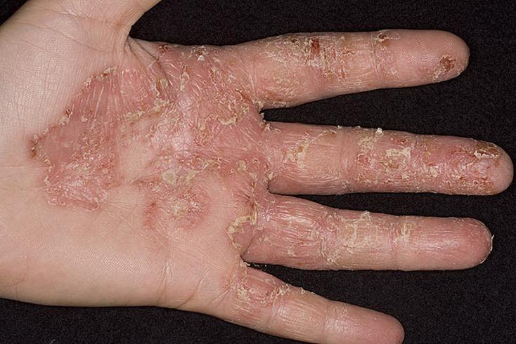 шелушение руки из-за экземы