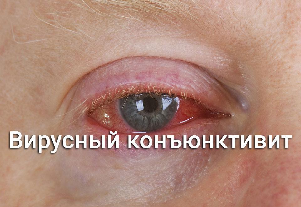 красный глаз - конъюнктивит