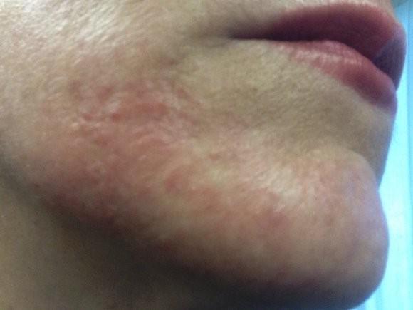 нервный дерматит на лице