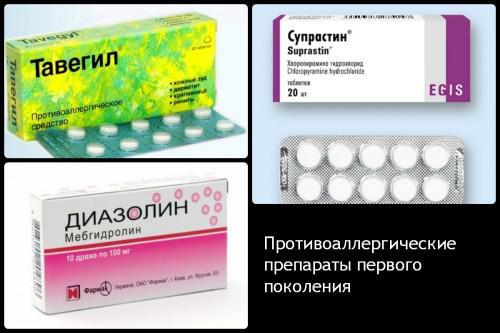 антигистаминные препараты в таблетках