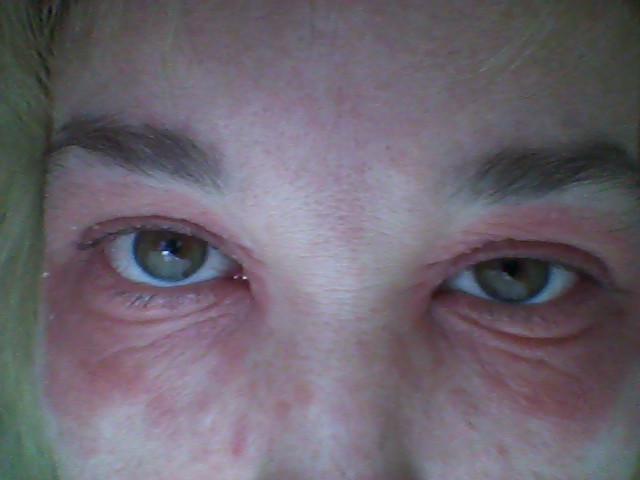 сыпь на лице в области глаз