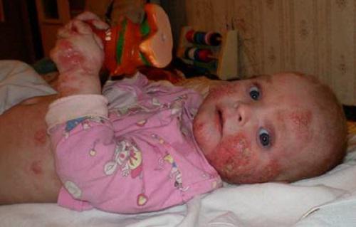 ребенок с атопическим дерматитом