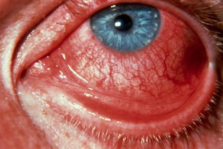 красный глаз из-за отека конъюнктивы