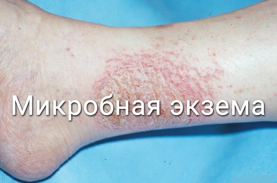 микробная экзема на ноге