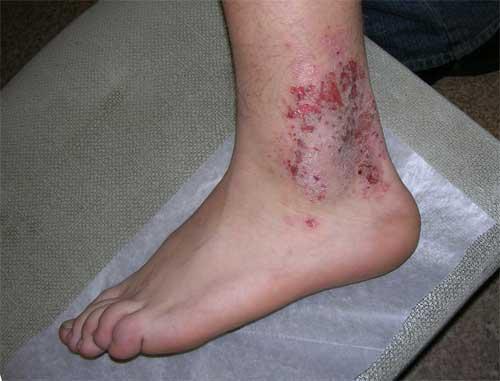 экзема на ноге