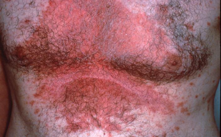 себорейный дерматит на грудной клетке