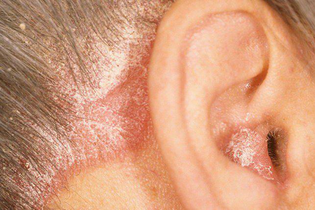 себорейный дерматит внутри ушной раковины