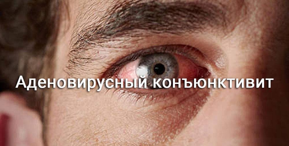 мужчина с красным глазом
