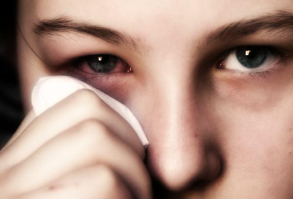 девушка с раздраженным глазом