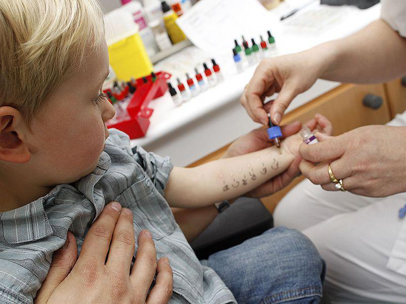 мальчику делают пробы на аллергены