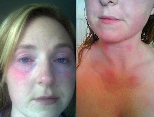 Аллергия на воду из под крана симптомы