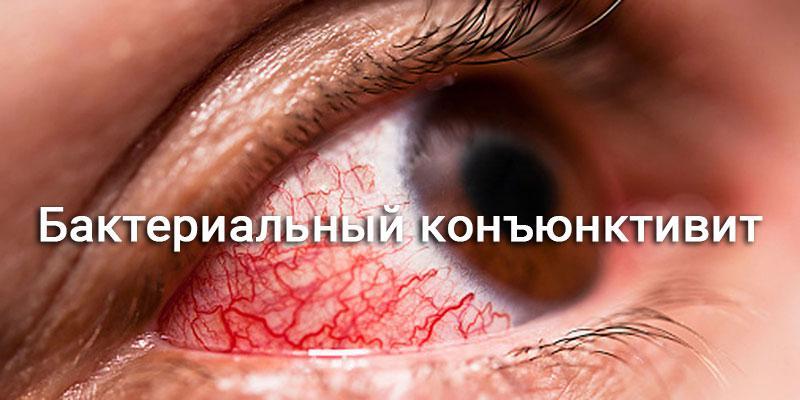 глаз с покраснением