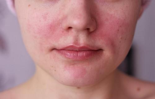красная кожа на лице