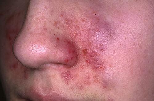 аллергические поражения на лице