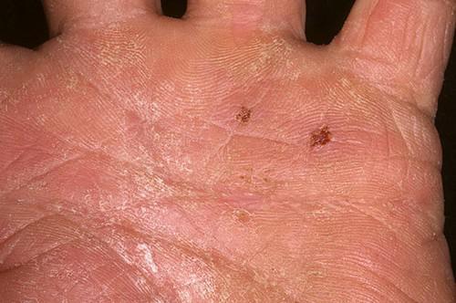 трещинки на руке