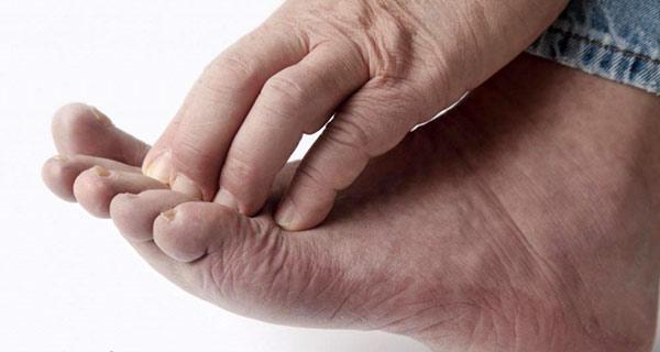 чешутся пальцы на ноге