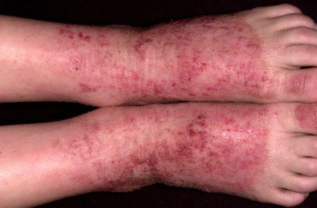 ноги пораженные экземой