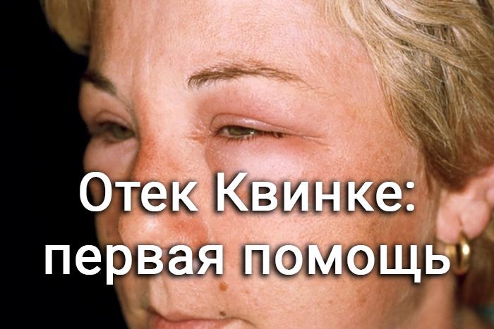 Отёк Квинке - симптомы и лечение в домашних условиях