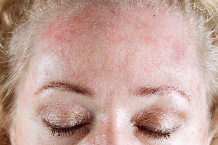сыпь из-за крапивницы на лице