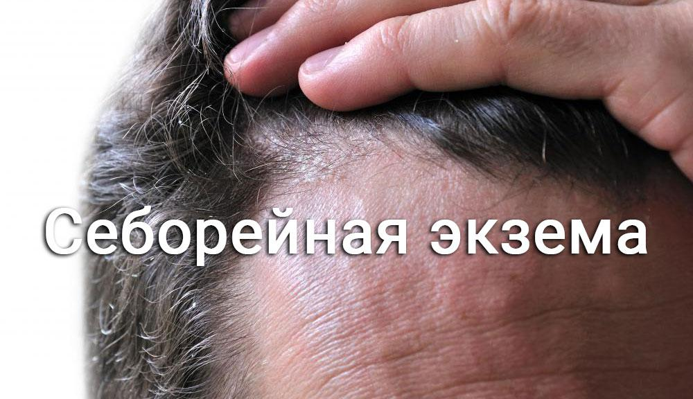 Сухая кожа головы в домашних условиях 308